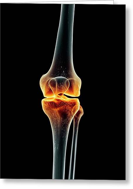 Human Knee Greeting Card by Sciepro