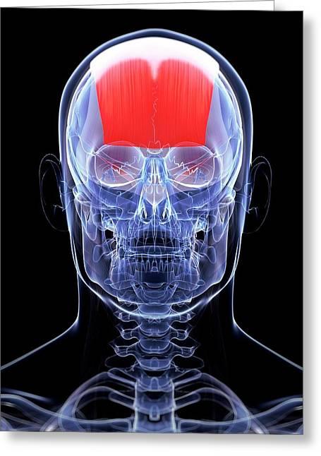 Human Muscle In Head Greeting Card by Sebastian Kaulitzki