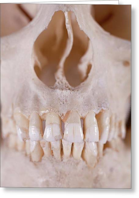 Human Skull Detail Greeting Card by Phil Hill