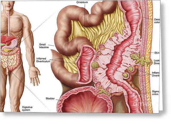 Illustration Of Diverticulosis Greeting Card by Stocktrek Images