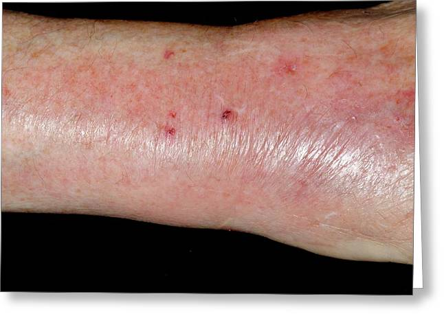 Infected Cat Bite On The Wrist Greeting Card by Dr P. Marazzi/science Photo Library