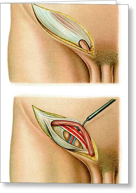 Inguinal Hernia Surgery Greeting Card by Science Photo Library