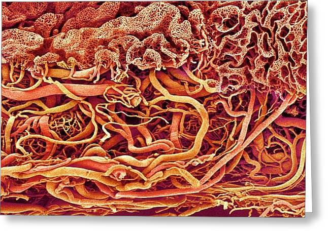 Intestinal Blood Vessels Greeting Card by Susumu Nishinaga