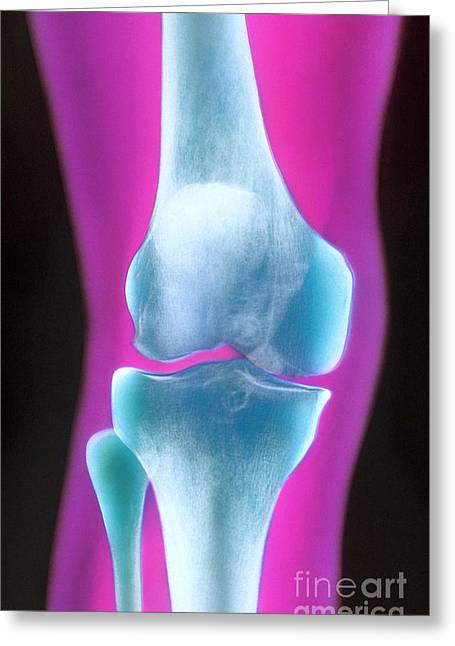 Knee X-ray Of A 72 Year Old Woman Greeting Card by Chris Bjornberg