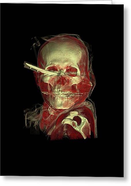 Knife Skull Injury Greeting Card