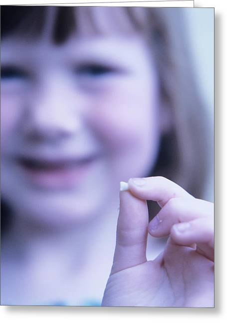 Loss Of Milk Teeth Greeting Card by Mark Thomas/science Photo Library