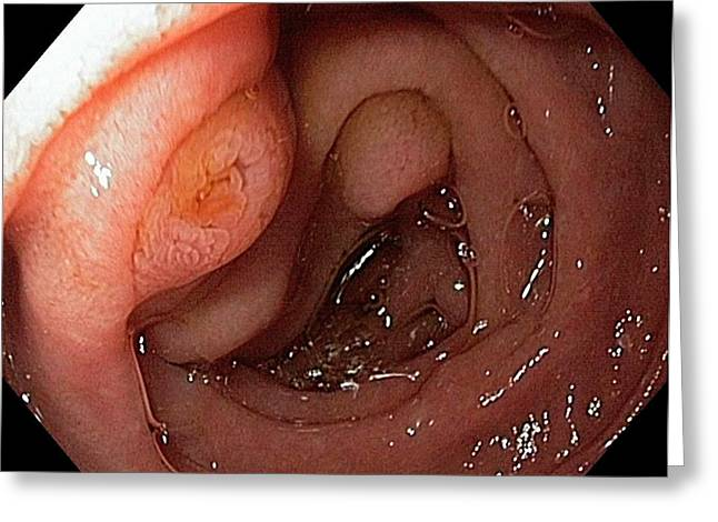 Major Duodenal Papilla Greeting Card by Gastrolab