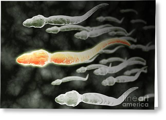 Microscopic View Of Sperm Traveling Greeting Card by Stocktrek Images