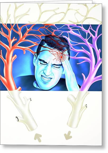 Migraine Greeting Card by John Bavosi