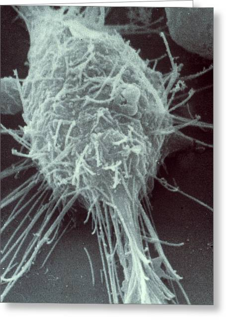 Neuroblastoma Cell Greeting Card by Biology Pics