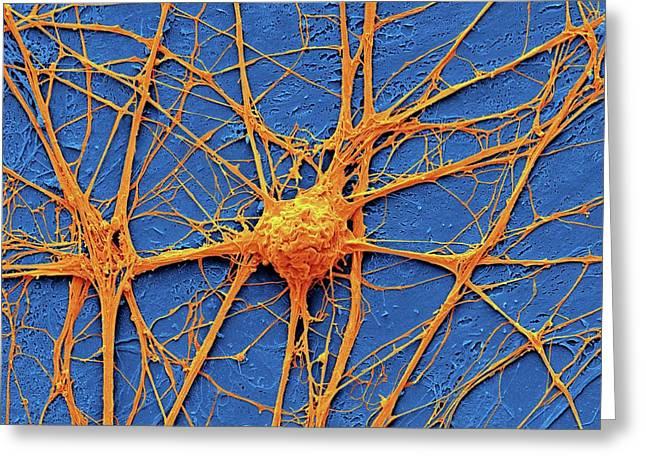 Neurone Greeting Card by Steve Gschmeissner