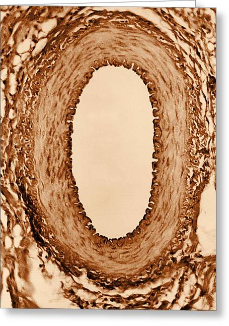Normal Artery, Tem Greeting Card by Omikron