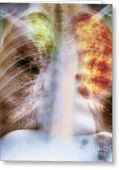Old And New Tuberculosis, X-ray Greeting Card by Spl