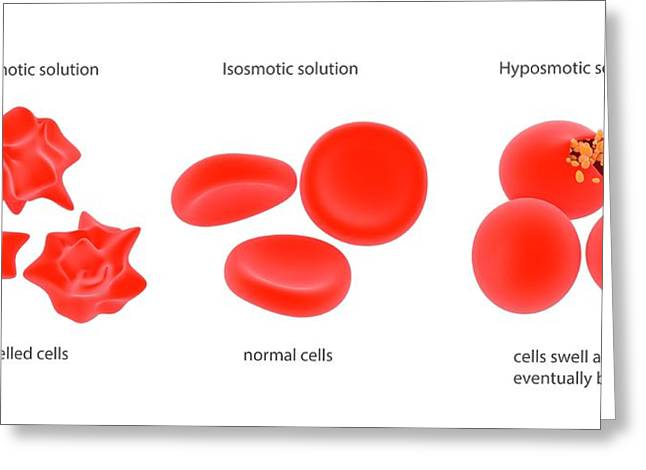 Osmosis In Red Blood Cells Greeting Card by Science Photo Library