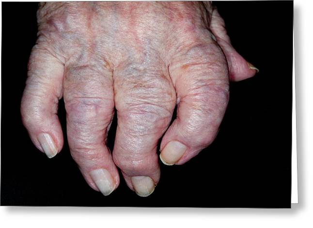 Osteoarthritis Of The Hand Greeting Card by Dr P. Marazzi/science Photo Library