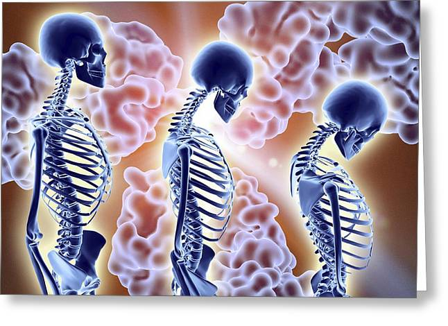 Osteoporosis Treatment With Antibodies Greeting Card