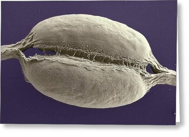 Phaeodactylum Tricornutum Greeting Card