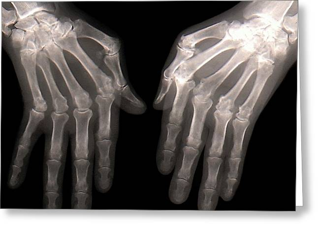 Rheumatoid Arthritis Of The Hands Greeting Card