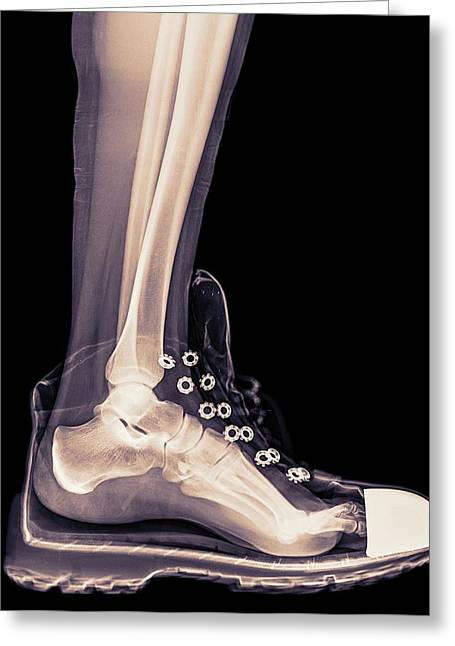 Running Shoe X-ray Greeting Card by Photostock-israel