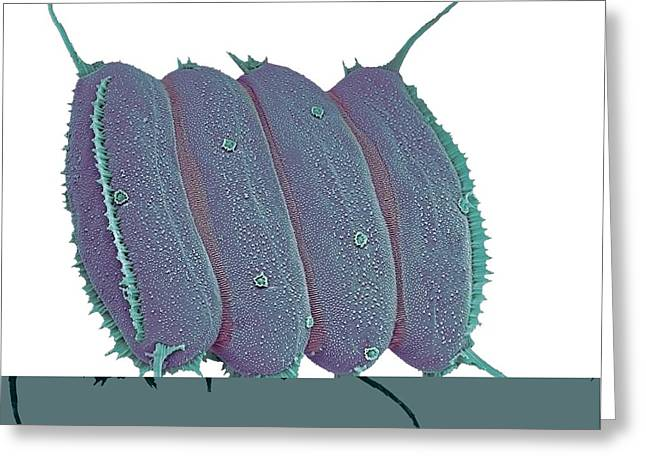 Scenedesmus Algae, Sem Greeting Card by Science Photo Library