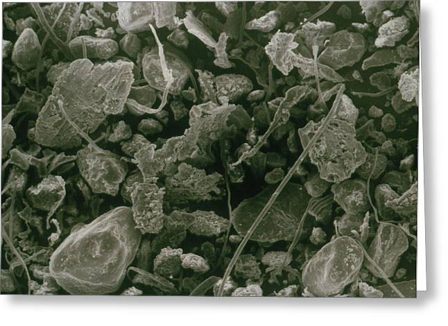Sem Of Household Dust From Vacuum Cleaner Greeting Card