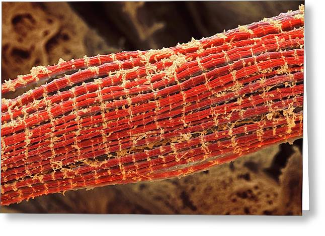 Skeletal Muscle Fibres Greeting Card by Steve Gschmeissner