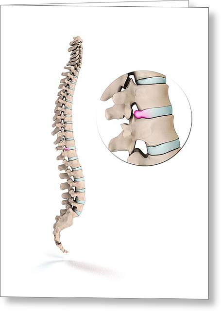 Spinal Disc Prolapse Greeting Card by Mikkel Juul Jensen