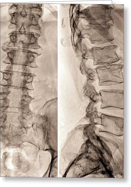 Spinal Stenosis After Surgery Greeting Card by Zephyr
