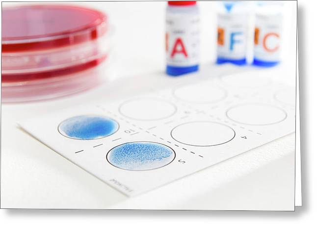 Streptococcal Grouping Test Greeting Card