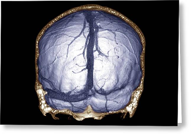 Thrombophlebitis Of The Brain Greeting Card by Zephyr