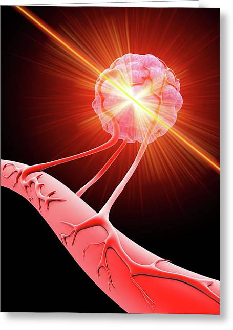 Tumour Cell Blood Vessel Greeting Card by Alfred Pasieka