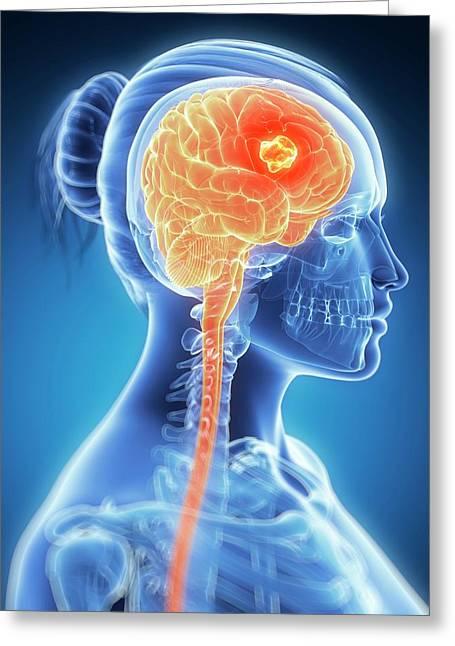 Tumour In The Brain Greeting Card by Sebastian Kaulitzki