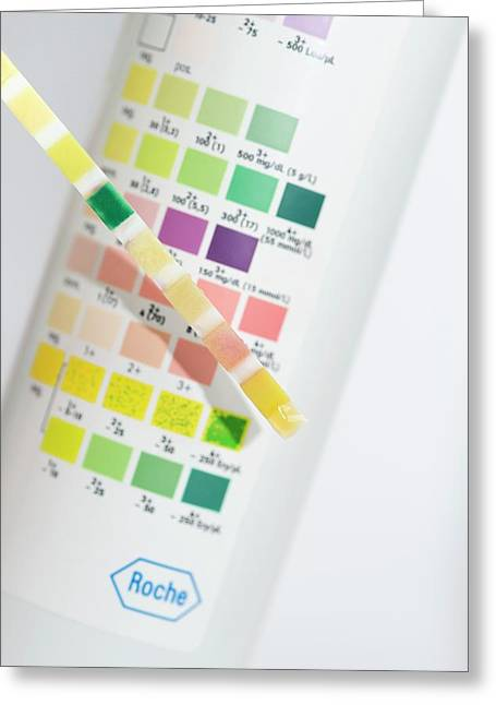 Urine Test In Patient With Jaundice Greeting Card