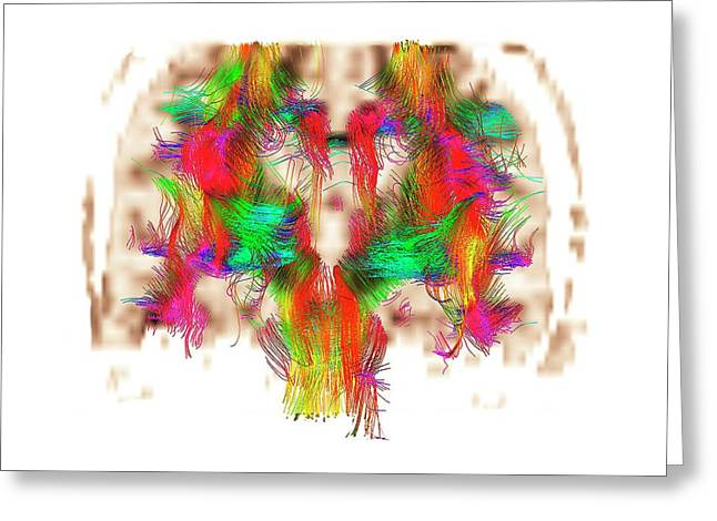 White Matter Fibres Greeting Card