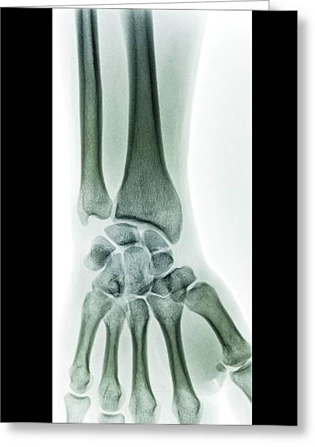 Wrist Fracture Greeting Card by Zephyr