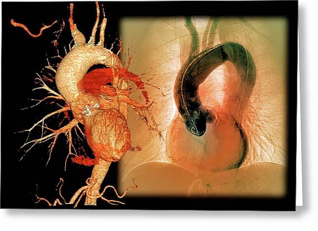 Aortic Aneurysm In Hypertension Greeting Card