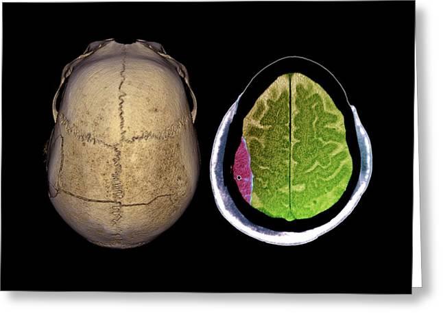 Brain Haemorrhage Greeting Card by Zephyr