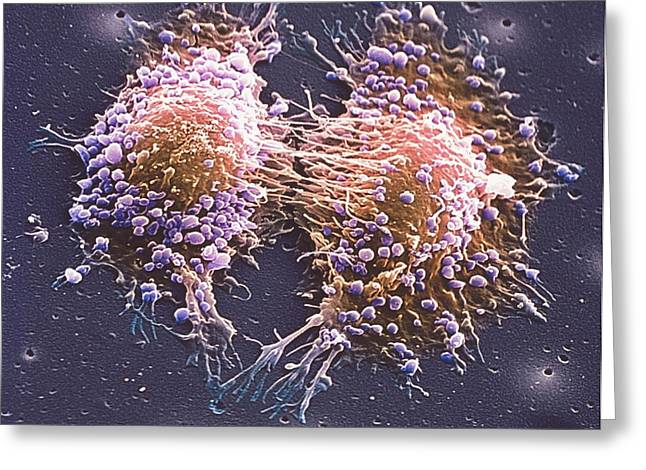 Cancer Cell Division Greeting Card by Steve Gschmeissner