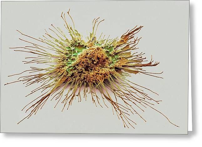 Dendritic Cell Greeting Card by Steve Gschmeissner