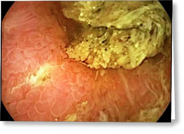 Crohn's Disease Greeting Card by Gastrolab