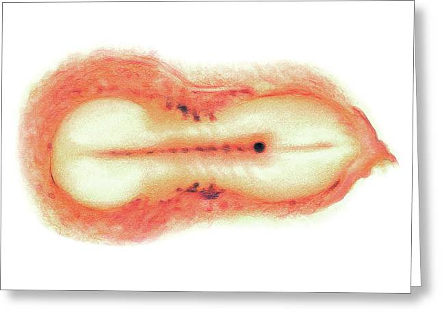 Embryo Greeting Card by Asklepios Medical Atlas