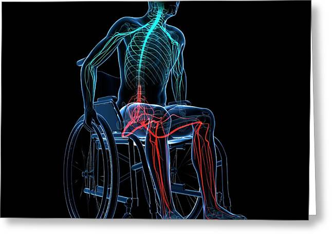 Man In A Wheelchair Greeting Card by Sciepro/science Photo Library