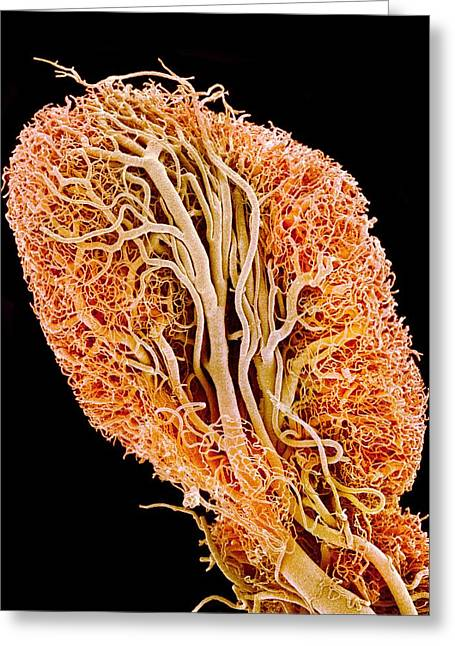 Blood Vessels Of A Lymph Node Greeting Card
