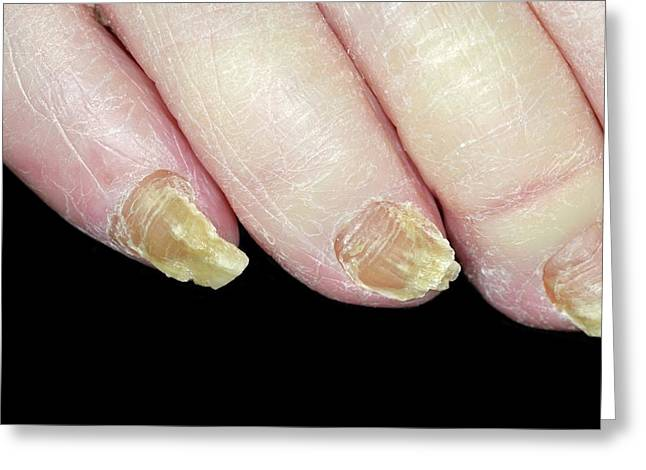 Fungal Nail Infection Greeting Card by Dr P. Marazzi/science Photo Library