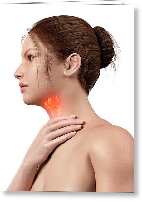 Inflammation Of The Larynx Greeting Card by Sebastian Kaulitzki