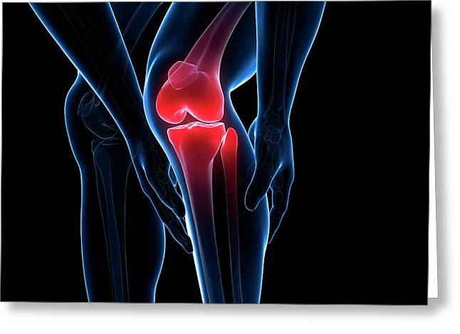 Painful Knee Greeting Card by Sciepro/science Photo Library