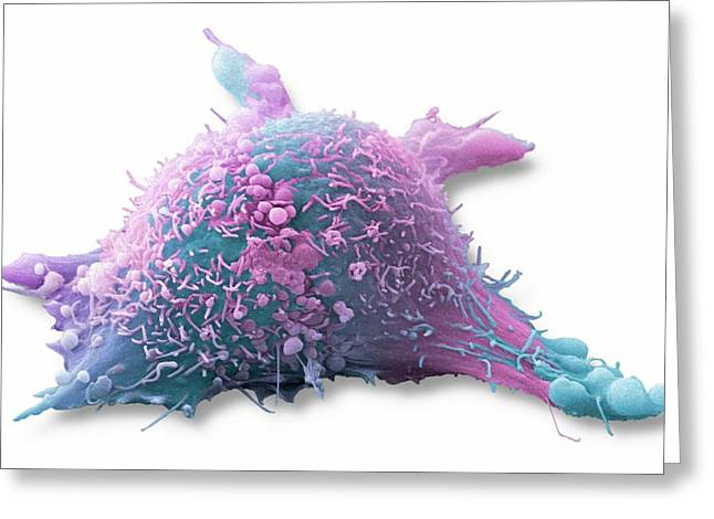 Skin Cancer Cell Greeting Card by Steve Gschmeissner
