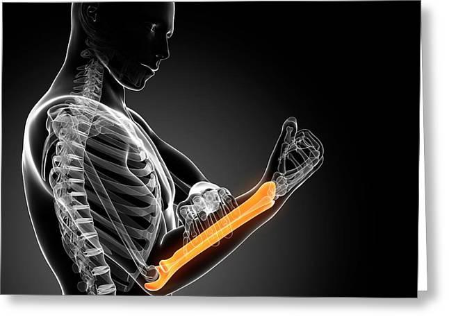 Human Arm Pain Greeting Card