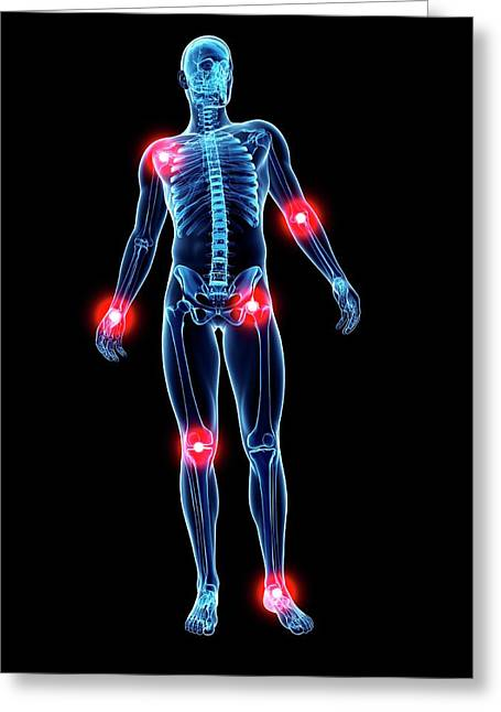 Joint Pain Greeting Card by Sciepro/science Photo Library