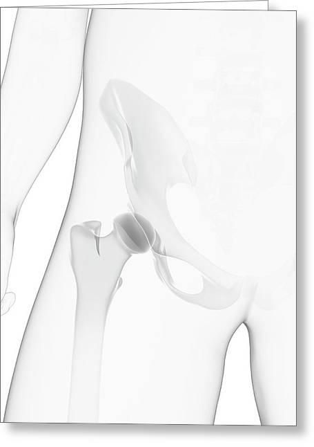 Male Pelvis Bones Greeting Card by Sciepro/science Photo Library
